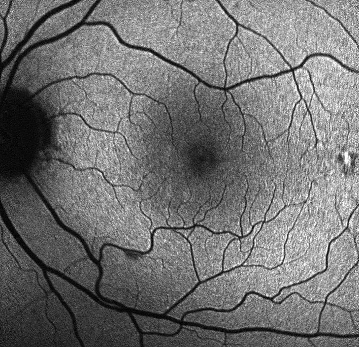 close-up photo of a retina