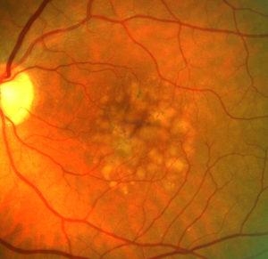 close-up photo of a retina: coloured